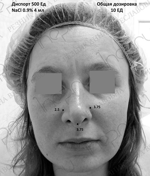 Точки и доза ботулотоксина