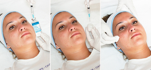 EASY-PHYTIC PEEL, протокол примения