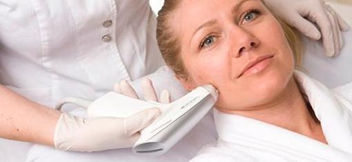 Шлифовка кожи: радиочастотная аблятивная терапия