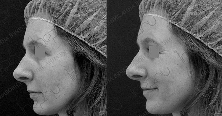 Уменьшение подвижности кончика носа после коррекции