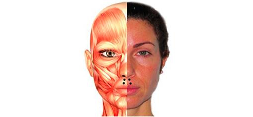 БТА для коррекции морщин в периоральной области